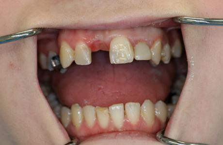 implant-1-b2